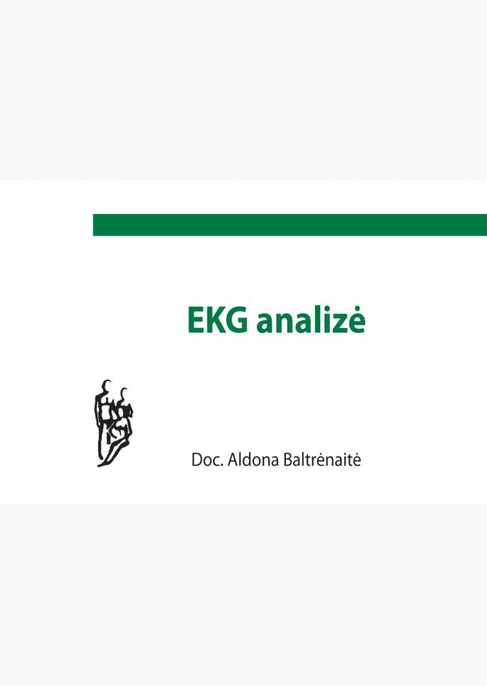 ekg-analize_1566827749-5cd4d57c81bddf54fb241849cf423eba.jpg